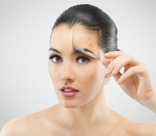 Tratamente de ultima generatie si remedii naturale pentru acnee