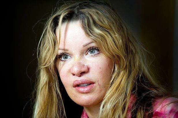"Victima a 350 de operatii estetice: ""Chirurgii plastici sunt atacatori cu acid in halate albe"". Vedeta care si-a distrus chipul dintr-o obsesie"