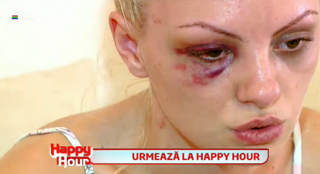Alexandra stan brutally beaten up by her boyfriend general exhale alexandra stan batuta si desfigurata de thecheapjerseys Choice Image