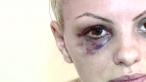 Alexandra Stan, supusa unei investigatii la tomograf. Cantareata se plange inca de dureri mari de cap