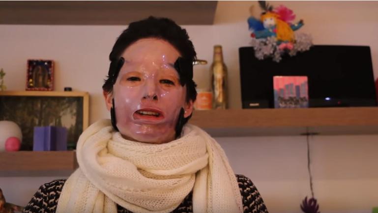 Cazul ei a schimbat legile in Columbia. Tanara desfigurata cu acid acum 2 ani a iesit in public fara masca