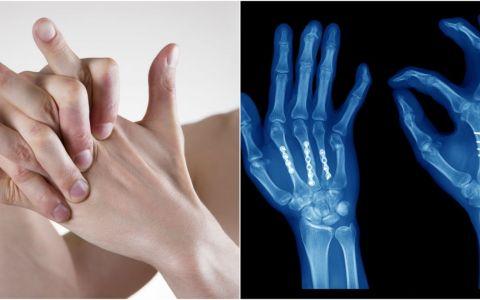 Ce se intampla cand isi trosnesti incheieturile mainii? Adevarul este fascinant