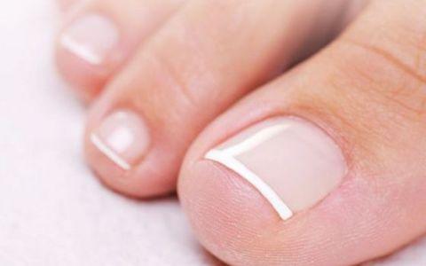 (P) Unghiile tale sunt pregatite pentru intilnirea cu sandalutele preferate?