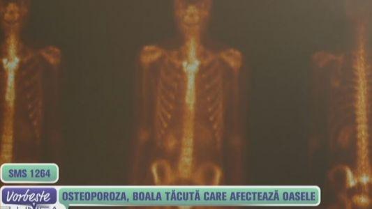 Osteoporoza, boala tacuta care afecteaza oasele