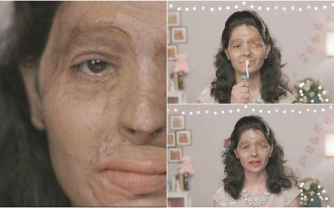 Cand avea doar 17 ani a fost arsa cu acid sulfuric, iar chipul ei s-a transfomat complet. La 2 ani de la tragedie, a primit cea mai frumoasa veste
