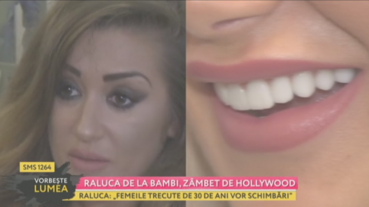 Raluca de la Bambi, zambet de Hollywood