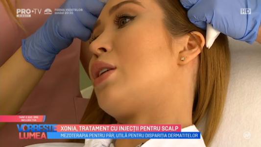 Xonia, tratament cu injectii pentru scalp