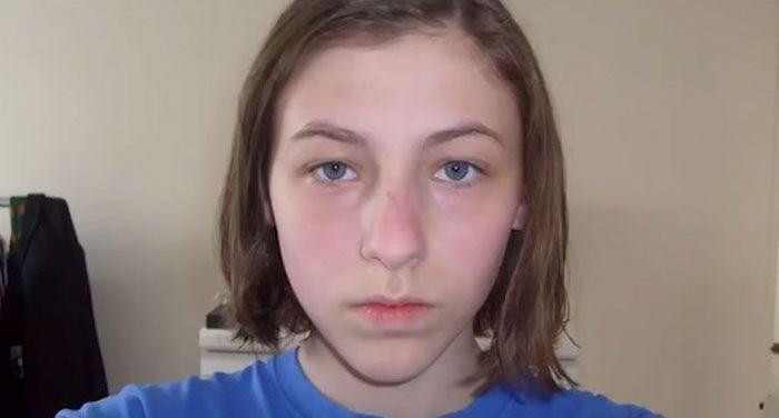 Timp de 8 ani, o adolescenta si-a facut zilnic cate un selfie. In ultima fotografie este greu de recunoscut