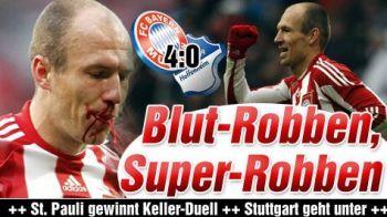FOTO HORROR! Robben, lasat in SANGE la meciul lui Bayern cu Hoffenheim!