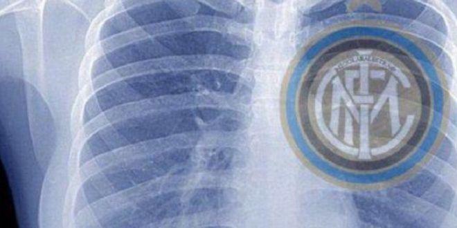 Azi mi-am facut o radiografie!  Poza pusa de Walter Zenga pe Twitter face senzatie in presa italiana: