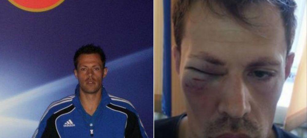 """SOCANT! Un arbitru a fost batut in timp ce se antrena. Imagini socante cu tanarul tusier: """"Nu a fost la meci, ci la antrenament"""""""