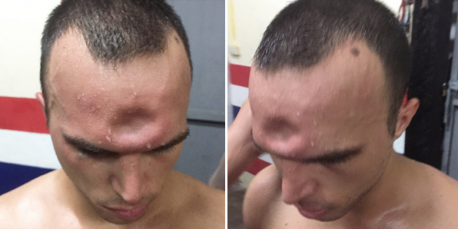 A fost trimis la operatie imediat, dupa ce s-a trezit cu o gaura imensa in cap! Ce a patit un luptator! FOTO