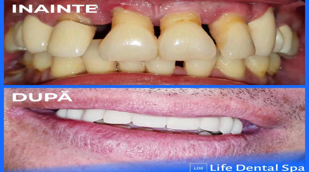 (P) Dinți ficși pe implanturi într-o singura zi, cu ajutorul laserului dentar
