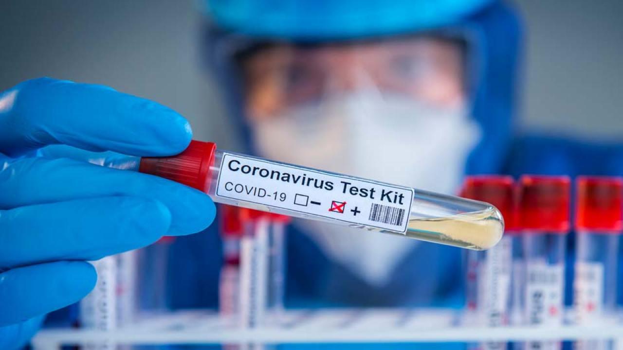 A fost descoperit medicamentul de aproape 3000 de ori mai eficient decat Remdesivir! Poate schimba radical lupta contra COVID! Cand va putea fi cumparat