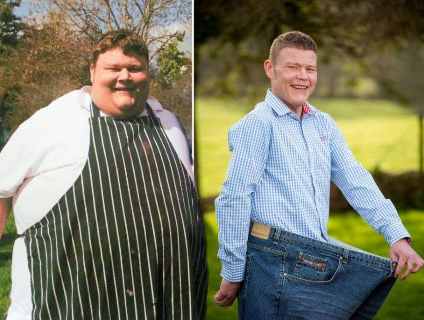 regim de slabit pentru obezitate morbida
