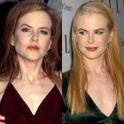 Cele mai nereusite operatii estetice de la Hollywood: actrite superbe care au exagerat in cautarea frumusetii eterne si si-au distrus chipul