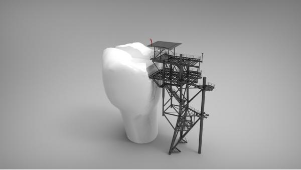 (P) Ce soluții există pentru recuperarea dinților pierduți?