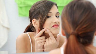 Evitati gesturile care va pot agrava acneea. Uite sfaturile specialistilor!
