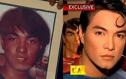 Si-a facut zeci de operatii estetice ca sa arate ca Superman! Cum a ajuns sa arate acum: FOTO