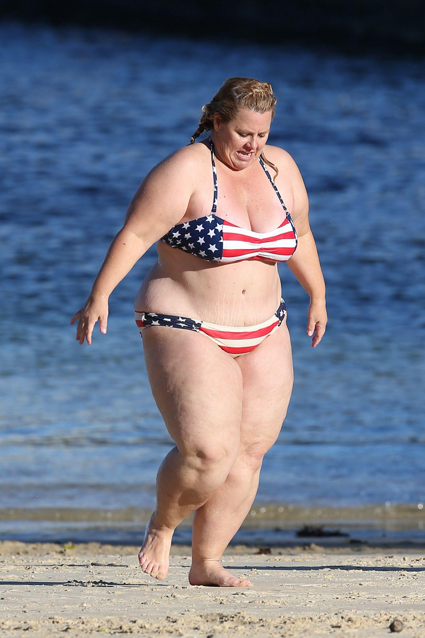 Prea grasa pentru operatie!
