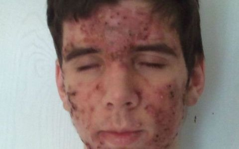 Cum s-a transformat un tanar afectat de o forma grava de acnee