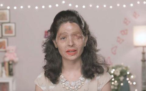 A fost arsa cu acid sulfuric la 17 ani. Un an mai tarziu, tutorialul sau de make-up transmite un mesaj cutremurator