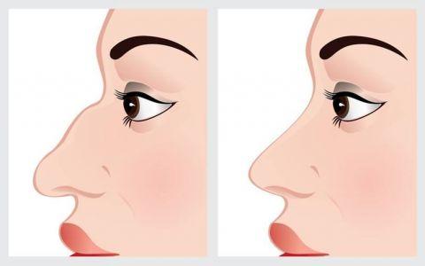 Ce spune nasul despre tine? La ce trebuie sa fii atenta cand te uiti la nasul cuiva