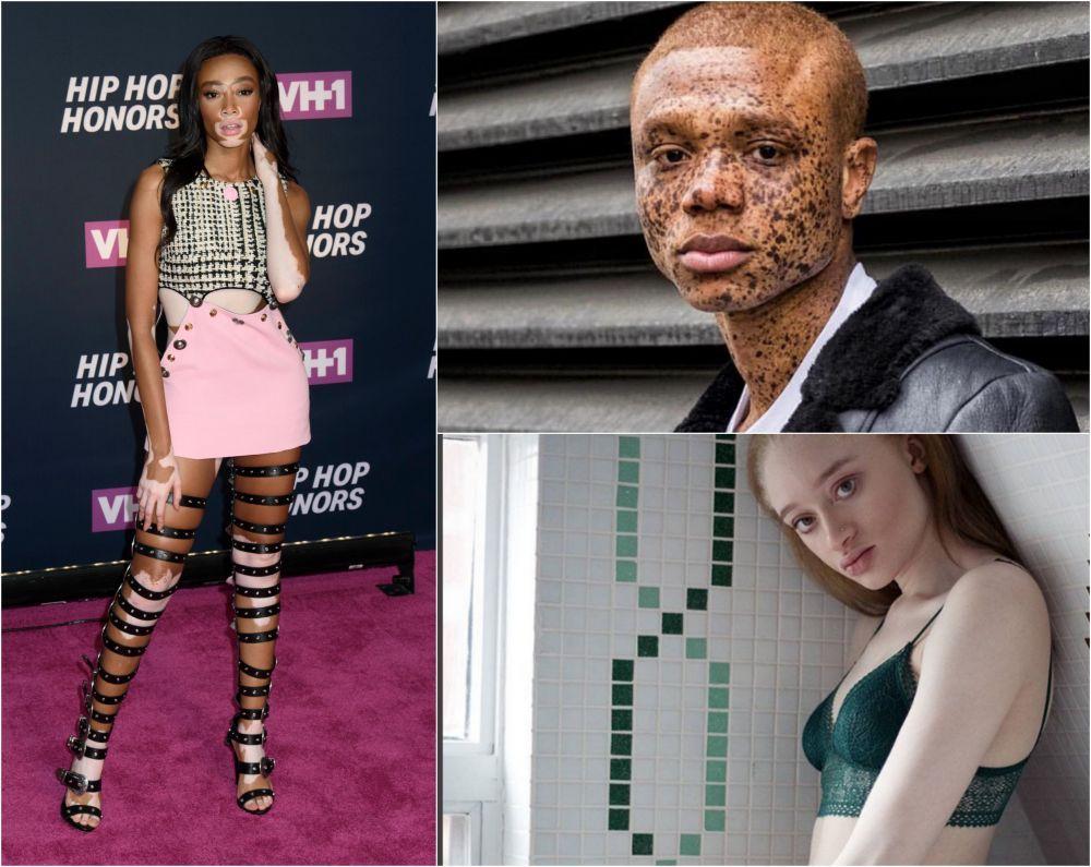9 persoane cu culori unice ale pielii. Cum arata tinerii care au uimit lumea cu frumusetea lor deosebita