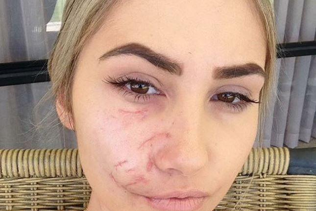 O tanara de 23 de ani a fost desfigurata de muscatura unui caine pitbull