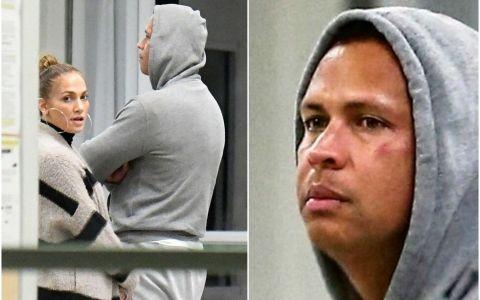 Alex Rodriguez, cu ochiul vânăt la câteva zile după ce a fost acuzat de infidelitate. J Lo, ce i-ai făcut?