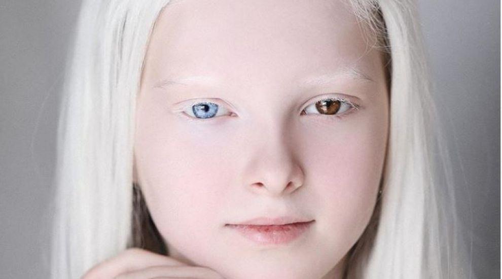 Amina, fetița cu albinism de o frumuseţe nepământeană uimește întreaga lume. A fost descoperită de o fotografă