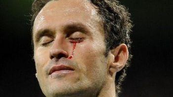 Imaginea care a IMPRESIONAT Spania: la Real Madrid se varsa SANGE pentru goluri!