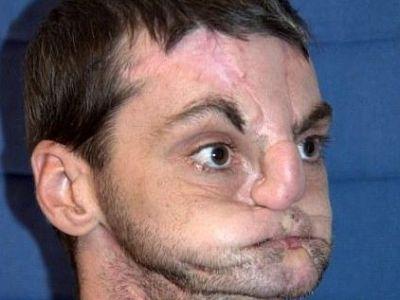 N-o sa-ti vina sa crezi cum a ajuns sa arate omul asta dupa 12 operatii! Transformarea INCREDIBILA care i-a inghetat pe medici