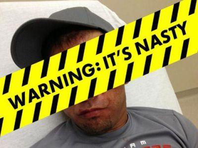 FOTO SOC! Luptator de MMA, desfigurat dupa ce a fost facut KO in cusca! Imaginea cu care si-a ingrozit fanii!