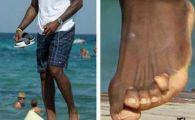 """Dovada ca 19.000.000$ nu se fac asa usor! SACRIFICIUL facut de acest superstar: """"Degetul mic pare ca i se desprinde de picior"""""""