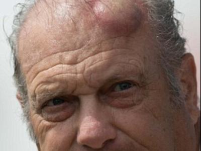 FOTO: Cel mai urat suvenir de la un turneu de golf! Ce i s-a intamplat barbatului din imagine :)