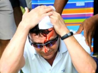 Tiger Woods a umplut de sange un spectator! Mingea lovita de el a aterizat in capul unui fan, care a avut nevoie de doctori! Faza socanta: