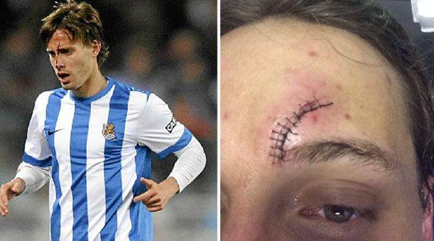 Meciul care l-a lasat desfigurat! Cum arata acest jucator dupa o ciocnire violenta cu Keita! FOTO