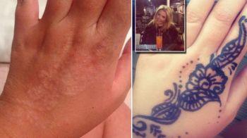 A vrut sa-si faca acest tatuaj pe mana, dar ce a iesit a lasat-o marcata pe viata! Cum arata acum. FOTO