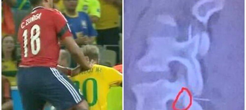 FOTO CUTREMURATOR! Neymar putea sa aiba soarta lui Nesu! Brazilianul a fost la 2 cm de drama!