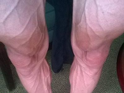 Efort INUMAN! Asa arata picioarele unui ciclist dupa o etapa in turul Frantei