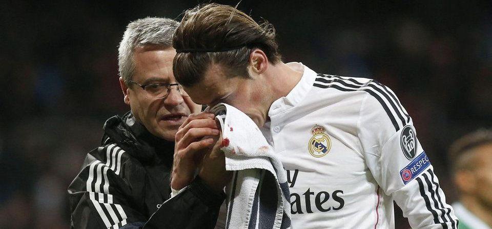SCENE socante pentru Bale! Toata lumea s-a speriat cand l-a vazut plin de SANGE! A fost schimbat imediat! VIDEO