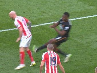 FOTO SOCANT! Faultul horror care a ingrozit fotbalul din Anglia in acest weekend. Cum arata piciorul acestui jucator dupa intrare