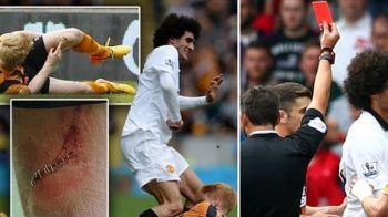 """Cazul """"Bourceanu"""" din Anglia. Cum arata piciorul acestui jucator dupa ce Fellaini a fost eliminat pentru o intrare criminala"""