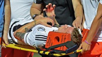 Imagini socante in Europa League: meciul Legiei a fost suspendat dupa ce un jucator a fost lovit in cap cu o piatra!