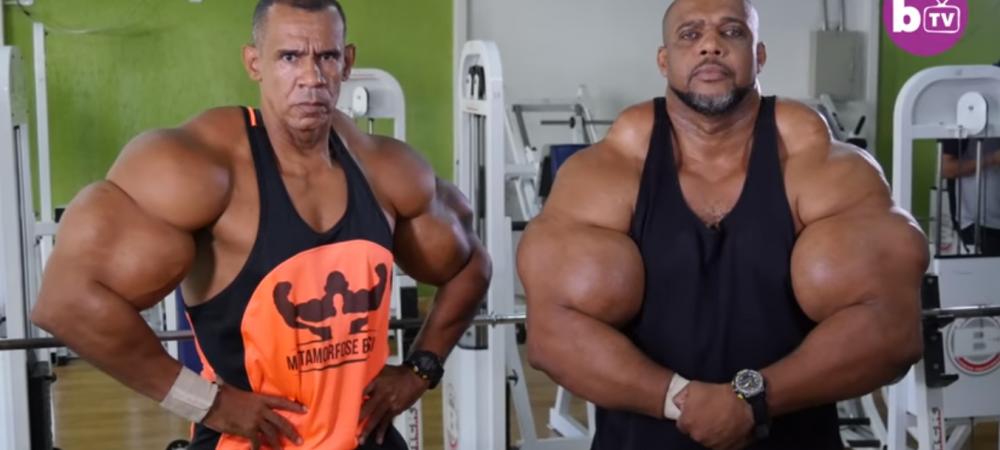 """Socant! Fratii care si-au injectat litri intregi de ulei in corp ca sa arate ca """"Hulk"""", dar risca sa moara in orice clipa"""