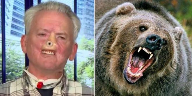Si-a pierdut nasul dupa o lupta cu un urs Grizzly, iar acum il tine in viata pe brat