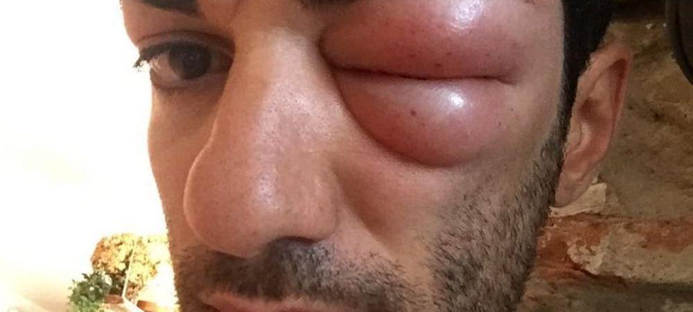 Nici daca se lupta cu Mike Tyson nu arata asa! Imaginea socanta publicata de un italian: ce a patit
