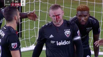 VIDEO | Rooney, plin de sange dupa primul sau in MLS! A avut nevoie de cinci copci