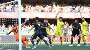 """""""Direct la TINTA!"""" Cristiano Ronaldo i-a SPART NASUL portarului lui Chievo! Cum arata dupa ce a petrecut noaptea in spital"""